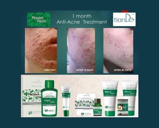 Cremas Faciales Naturales. Tratamientos Naturales para el Acné. Los mejores resultados