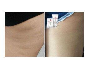 Adiós a la Celulitis. Contribuye a la formación normal de colágeno para el funcionamiento normal de piel